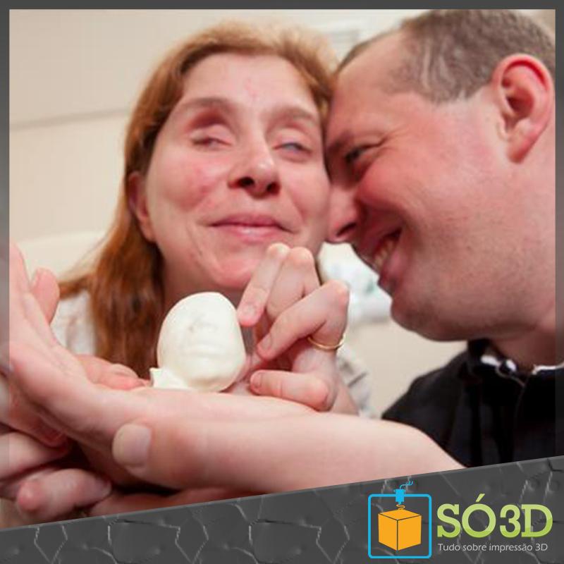 Impressão 3D permite casal de deficientes visuais conhecer o filho em gestação<